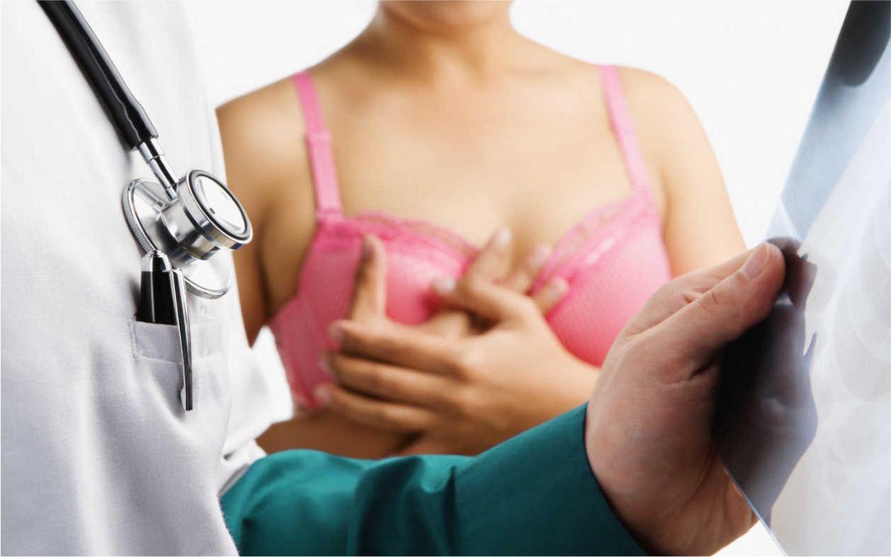 ¿Por qué acudir a consulta de mastología?