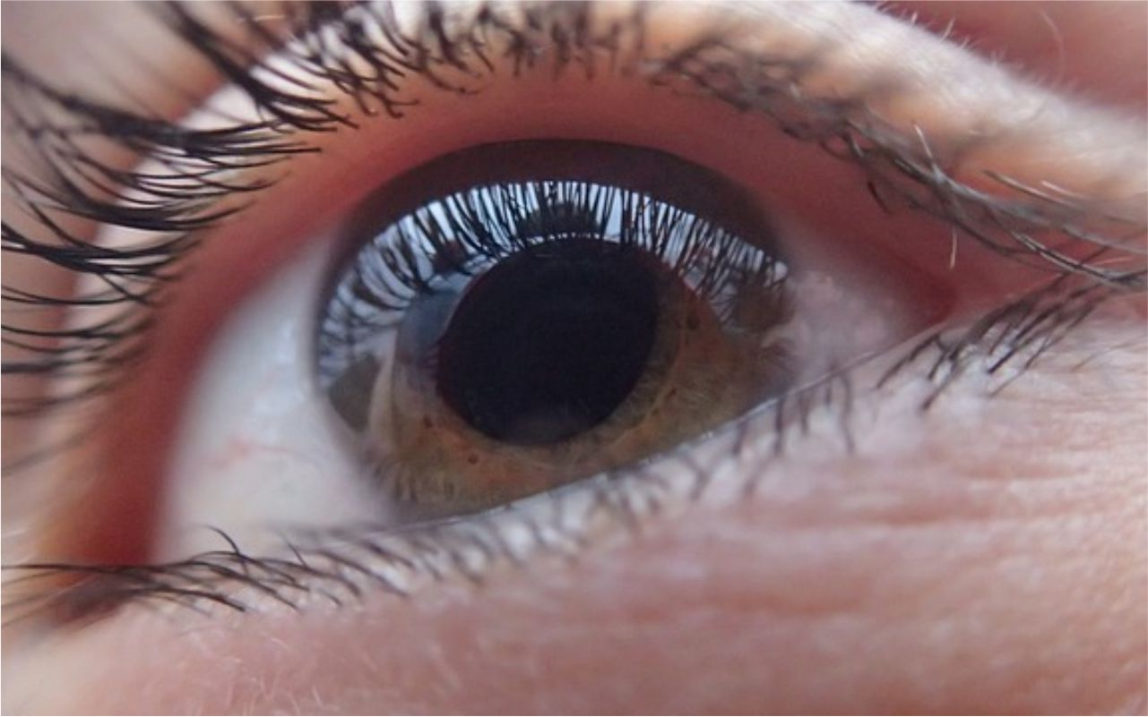 ¿Puedo ponerme un lente intraocular?